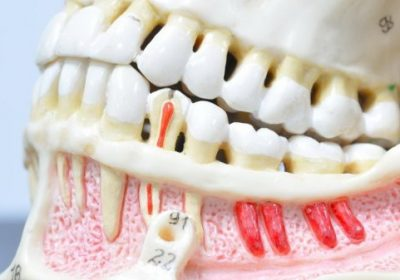 maket-bolnyh-i-zdorovyh-zubov